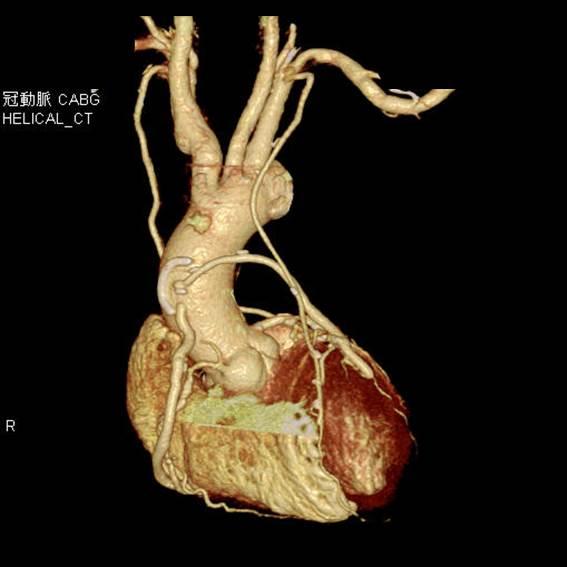 バイパス 術 冠動脈