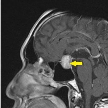 脳下垂体腫瘍 〜その目のかすみ、実は脳腫瘍かも!?〜