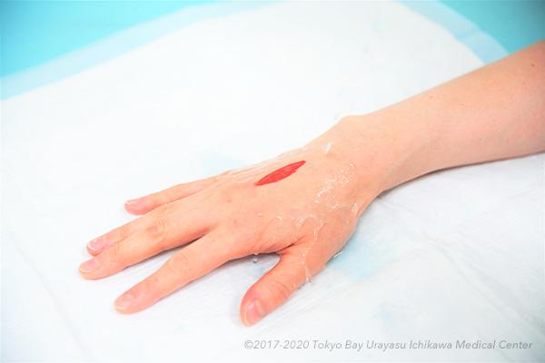 止血 包丁 指